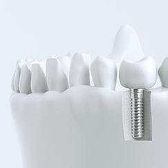 Zahnimplantate Bad Wildungen